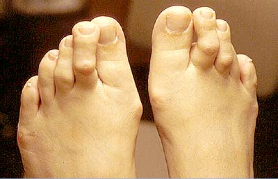 hammertoe surgery